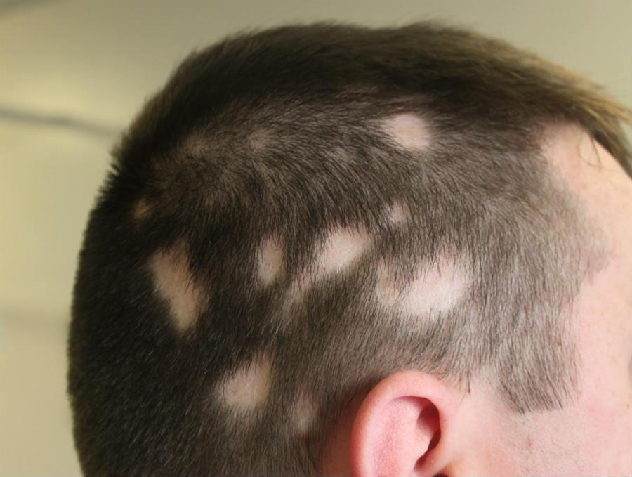 Hope For Sufferers Of Alopecia Areata